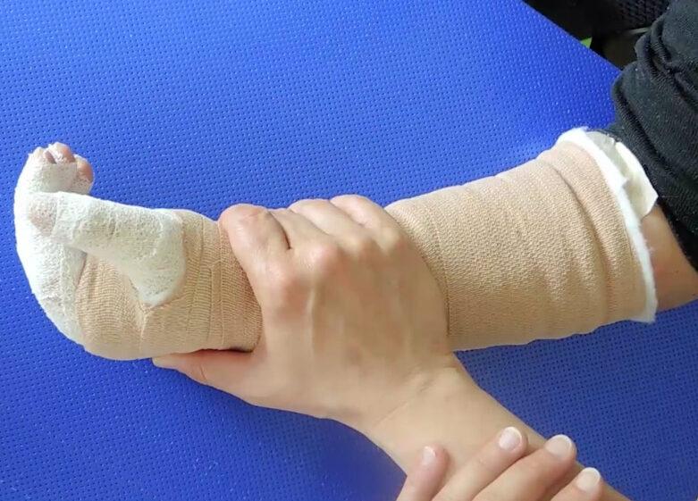 Chirurgia della mano tetraplegica