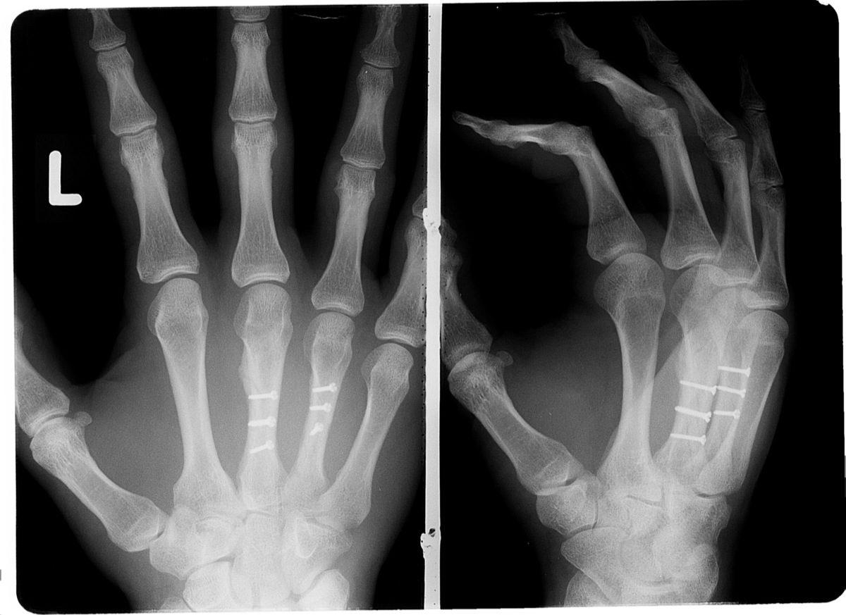 SGH_robinadams_handoperation_röntgenbild